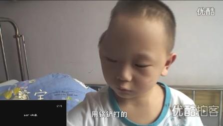 jongetje-china-hoofd-1